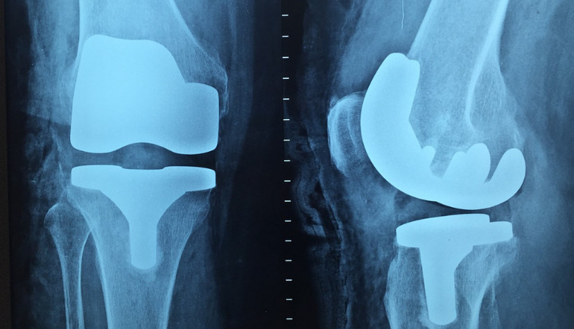 Orthopaedic Physiotherapy Knee Replacement Home visits in Newcastle, Gosforth, Jesmond, Wallsend, North Shields, Tynemouth, Cullercoats, Whitley Bay, South Shields